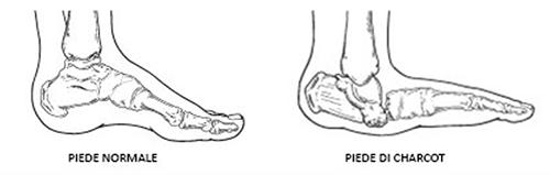 Risultati immagini per piede di charcot