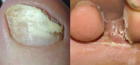 La medicina che tratta le unghie di fungo iniziate